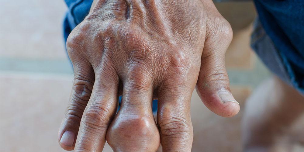Pengapuran tulang di jari tangan dapat menyebabkan nyeri dan bengkak
