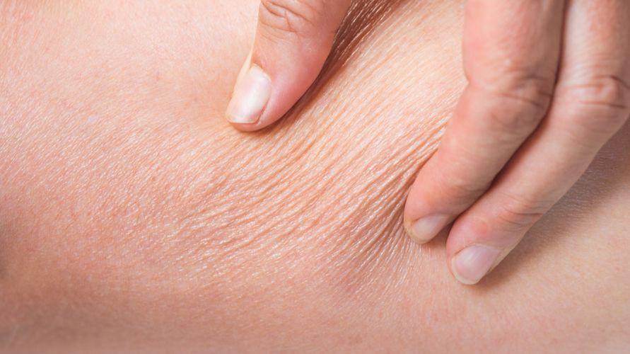 Kulit dehidrasi terjadi akibat kekurangan cairan tubuh