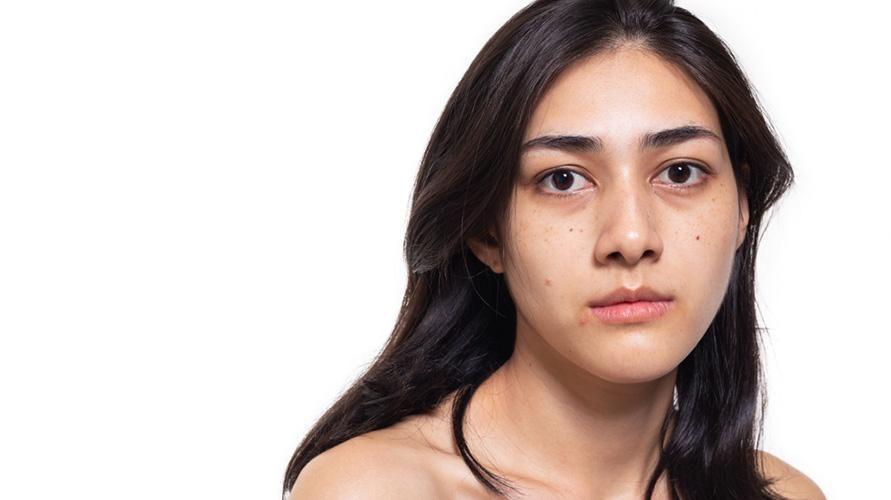 Wajah pucat bisa terjadi karena kurangnya oksigen di dalam aliran darah
