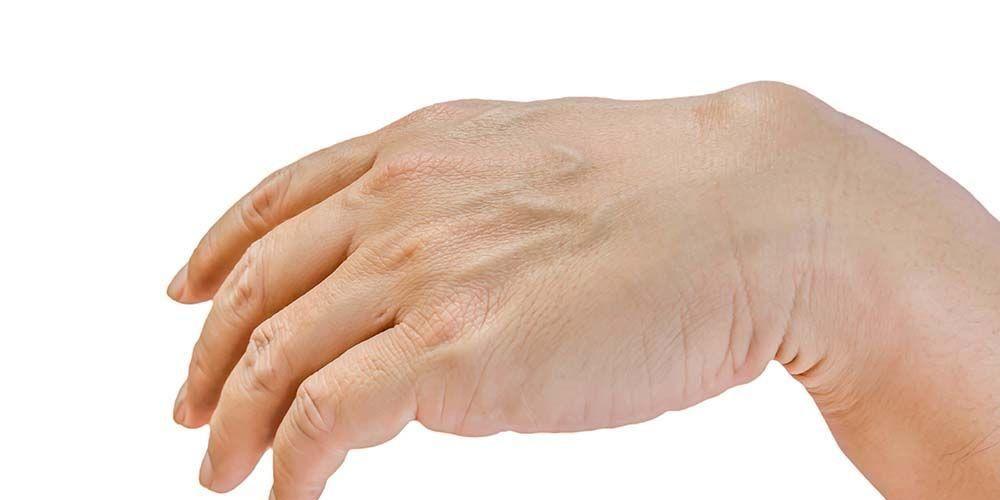 Jenis kista ganglion, yaitu kista yang muncul pada tendon atau sendi