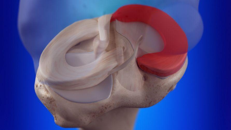 Mediskus adalah salah satu bagian lutut yang rentan cedera