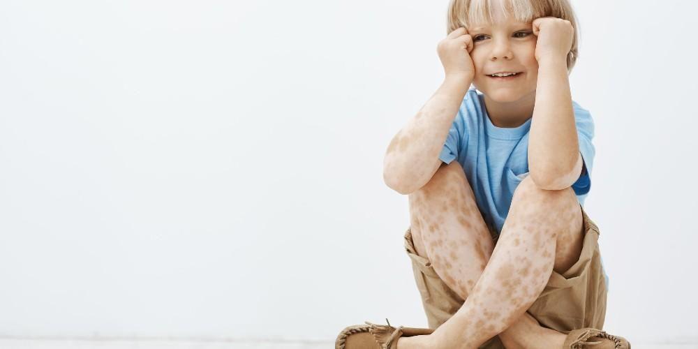 Xeroderma pigmentosum menyebabkan penderitanya mengalami bercak di kulit