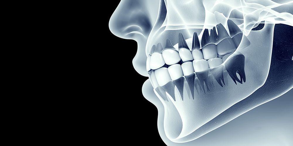 Fungsi tulang rahang atas adalah sebagai tempat melekatnya gigi bagian atas