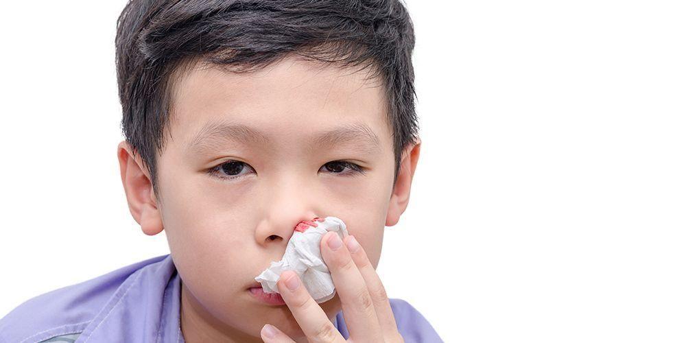 Salah satu cara mengatasi mimisan pada anak adalah menjepit hidungnya selama 10 menit dengan tisu