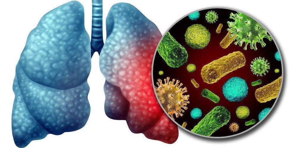 Virus korona bisa menular dari manusia satu ke manusia lainnya