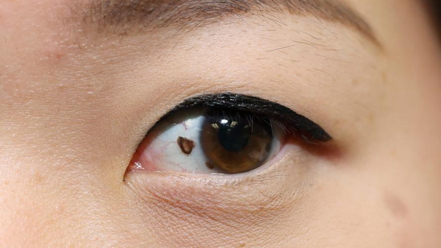 bintik hitam di mata