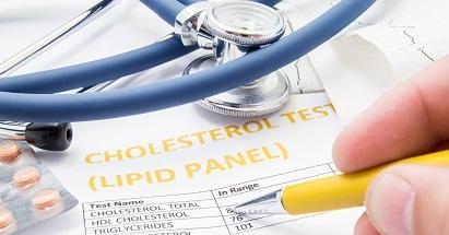 Gejala Kolesterol Tinggi dan Cara Mengatasinya dengan Sederhana