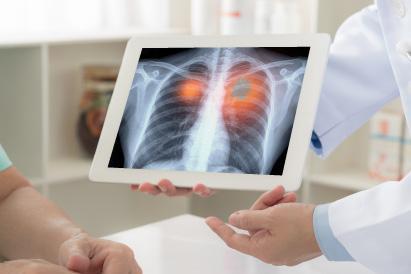 Perbedaan tumor dan kanker hanya bisa diketahui melalui pemeriksaan medis