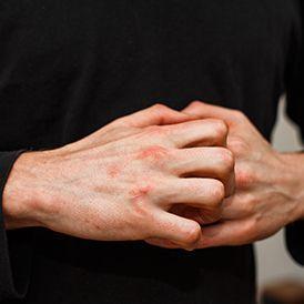 Jari tangan gatal dan bitnik-bintik berair bisa mengganggu penampilan