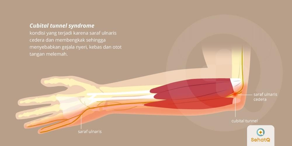 image Cubital Tunnel Syndrome