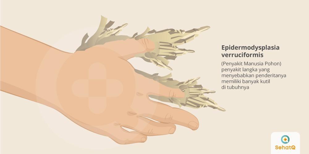 Penyakit Manusia Pohon (Epidermodysplasia verruciformis) merupakan penyakit langka yang menyebabkan penderitanya memiliki banyak kutil di tubuhnya