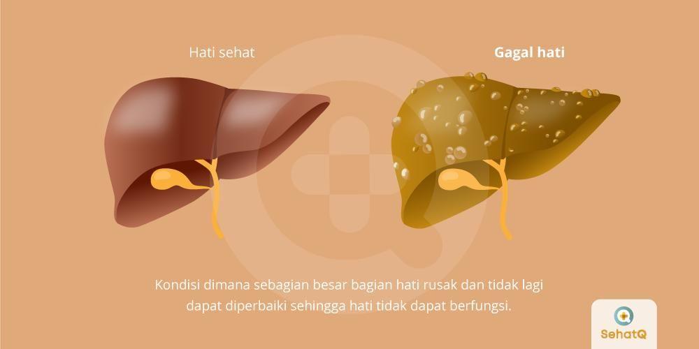 image Gagal Hati