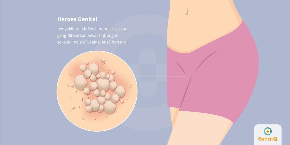 image Herpes Genital