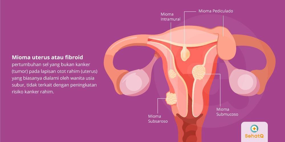 Mioma uterus dapat menimbulkan pendarahan berlebih serta rasa nyeri ketika menstruasi.