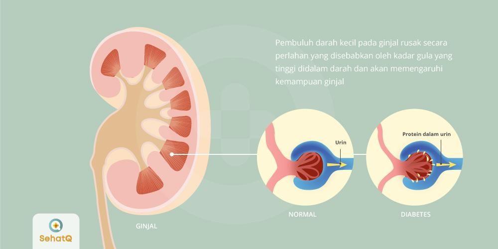 Nefropati diabetik dapat menyebabkan penurunan fungsi dan kerusakan pada ginjal