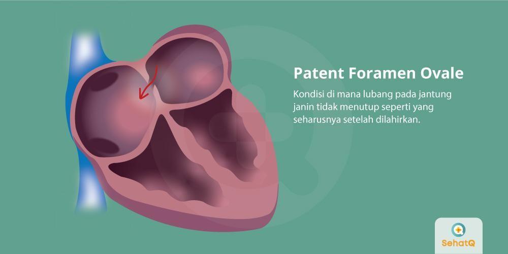 image Patent Foramen Ovale