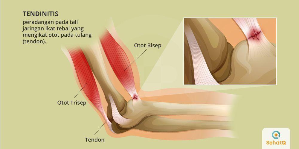 Tendinitis adalah peradangan pada jaringan yang mengikat otot pada tulang