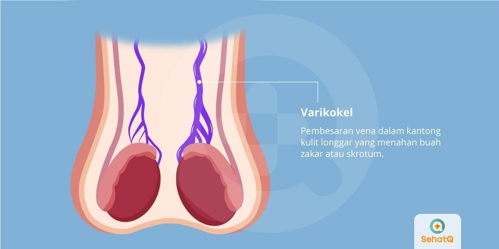 image Varikokel