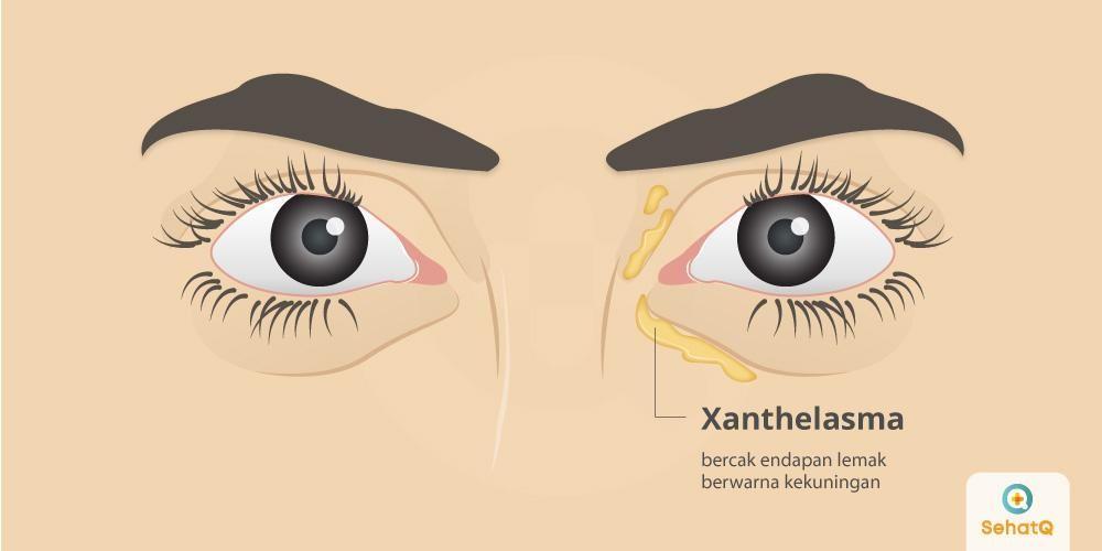 Xanthelasma ditandai dengan adanya endapan lemak berwarna kuning di antara kelopak mata dan hidung