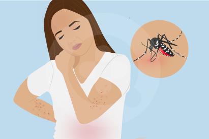 Mengoleskan losion antinyamuk bisa menjadi cara untuk mencegah demam dengue.
