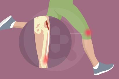 ITBS (Iliotibial Band Syndrome)