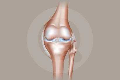 Lutut Keseleo
