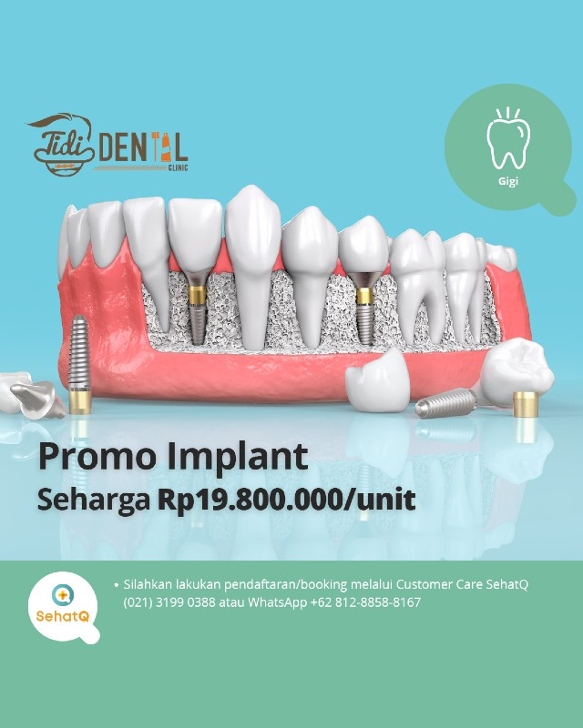 Promo Implant - Tidi Dental Clinic